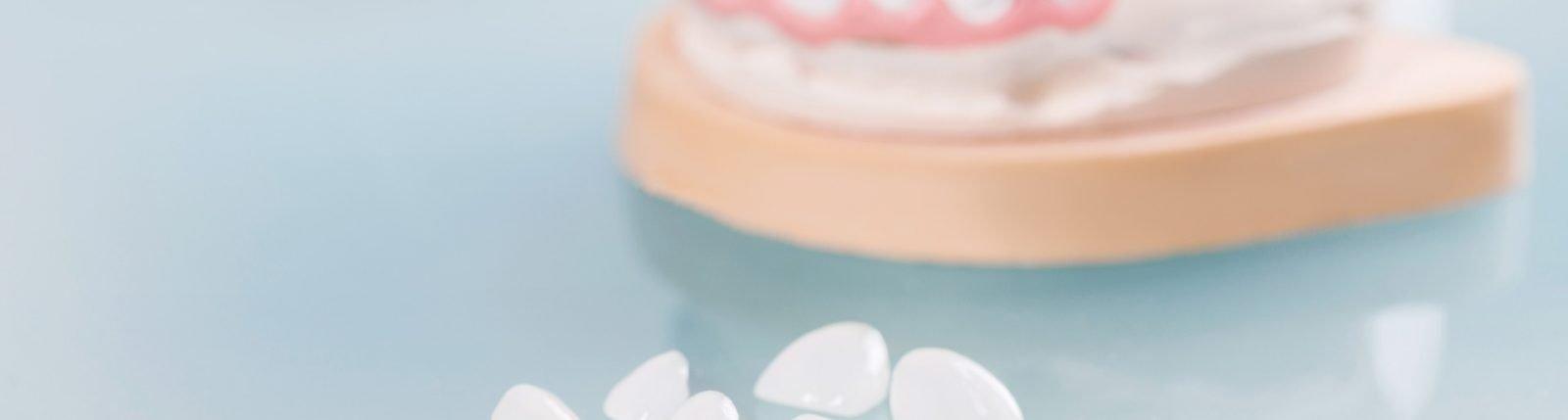 photo of porcelain veneer teeth mould