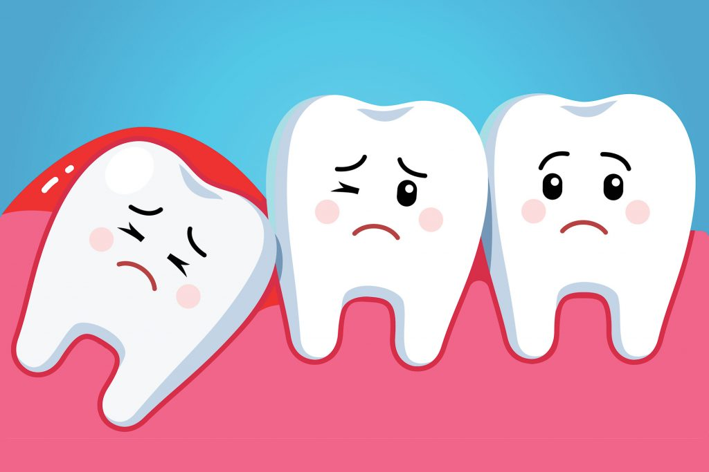 Sore Wisdom Tooth illustration