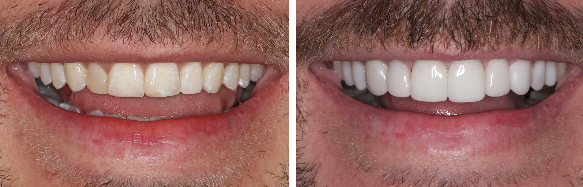 Dental Veneers- Perfect Your Smile Today!