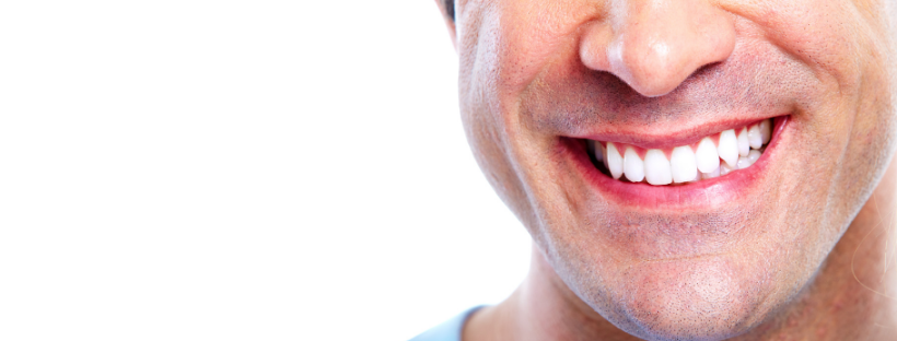 All on 4 Dental Implants – What are they?