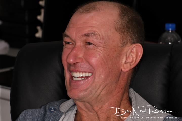 happy man smile teeth on implants